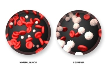 illustration of normal blood vs. leukemia